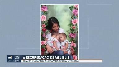 Nova vida para as gêmeas siamesas Mel e Lis - Gêmeas sentem falta uma da outra, mas se recuperam plenamente da cirurgia de separação.