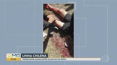 Adolescente quase perde as pernas por causa de linha chilena em Betim, na Grande BH - O fato foi neste sábado à tarde. Vítima ainda se recupera no Hospital Regional de Betim.