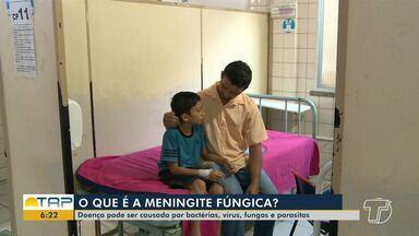 Meningite fúngica pode ser causada por vírus, fungos e bactérias - Saiba como identificar os sintomas dessa doença pouco conhecida.