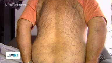 Idoso é atacado por enxame de abelhas, em Inhumas - Trabalhador rural de 67 anos roçava pasto em chácara, quando encostou em uma colmeia. Expedito Ribeiro de Castro ficou em observação na UPA da cidade, mas já recebeu alta.