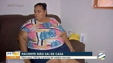 Paciente obesa precisa de consulta com médico vascular pelo SUS - Paciente obesa precisa de consulta com médico vascular pelo SUS.