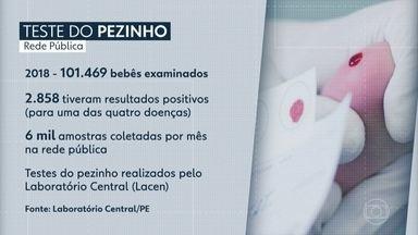 Mais de 30 mil testes do pezinho aguardam liberação de resultado em Pernambuco - Atraso pode comprometer a saúde dos bebês, segundo os médicos