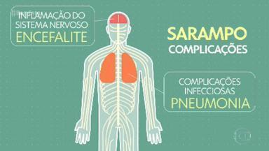 Risco de contágio por sarampo pode aumentar no carnaval - A doença é altamente contagiosa. Uma pessoa com sarampo pode contaminar até 18 outras.