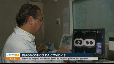 Exames de imagens mostram os danos do novo coronavírus nos pulmões dos pacientes - Diagnóstico da Covid-19.