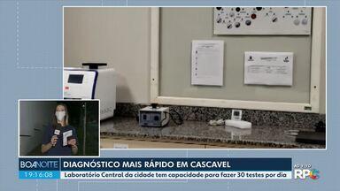 Laboratório Central de Cascavel começa a fazer testes para o novo coronavírus - Os resultados devem ficar prontos em até 24 horas.