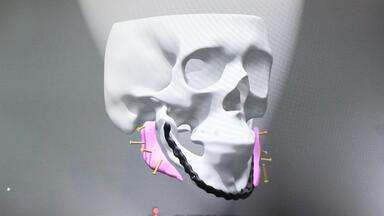 Tecnologia de desenvolvimento de próteses de SC auxilia na estética facial - Tecnologia de desenvolvimento de próteses de SC auxilia na estética facial