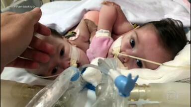 Gêmeas siamesas unidas pelo tronco sobrevivem em cirurgia inédita no Brasil - A mãe ouviu que a gravidez não iria para a frente, que um dos fetos era menor do que o outro e tinha chance zero de sobrevivência.