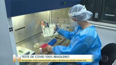 Universidades de Minas Gerais trabalham em um teste mais barato para diagnóstico da Covid - Pesquisadores explicam que o teste não usa reagentes.