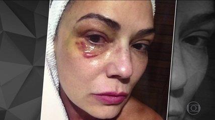 'Tive medo de denunciar', diz Luiza Brunet após agressão