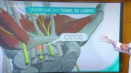Entenda o que é a Síndrome do Túnel do Carpo