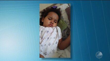 Pais lutam para conseguir cirurgia de retirada de tumor do cérebro de menina de três anos