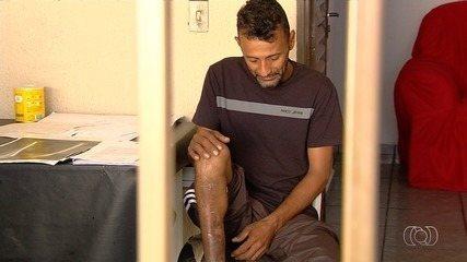 Motociclista precisa de cirurgia de reparação na perna após acidente de trânsito