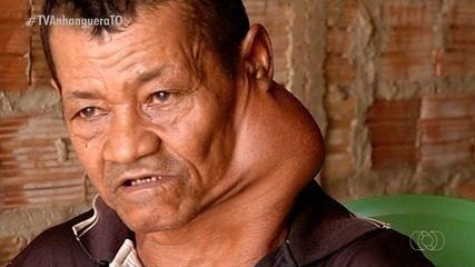 Homem aguarda por cirurgia no pescoço há dois meses