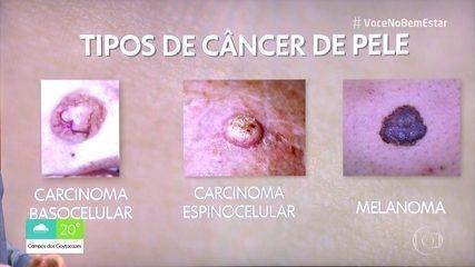 Entenda os tipos de câncer de pele