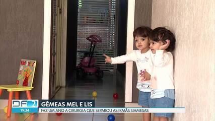 Faz 1 ano que gêmeas siamesas foram separadas numa complexa cirurgia