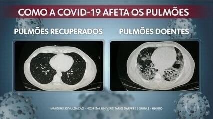 Imagens de exames mostram ação do coronavírus nos pulmões
