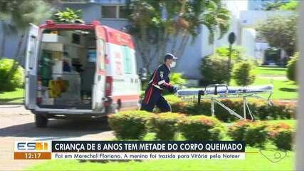 Criança de 8 anos tem metade do corpo queimado em Marechal Floriano