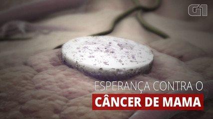 Pesquisa mostra que nova vacina contra o câncer de mama tem sucesso em testes