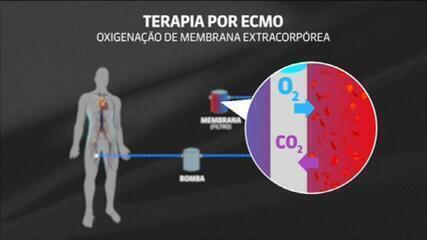 Entenda como é a terapia ECMO que está sendo feita em Paulo Gustavo