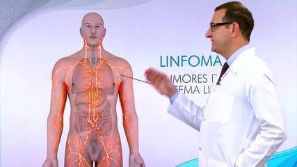 Conozca los síntomas del linfoma no Hodgkin.