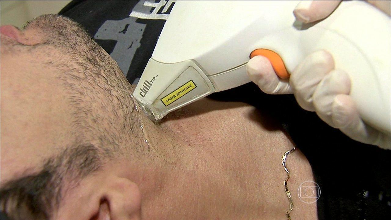 A nata eficaz de pigmentary nota em umas costas