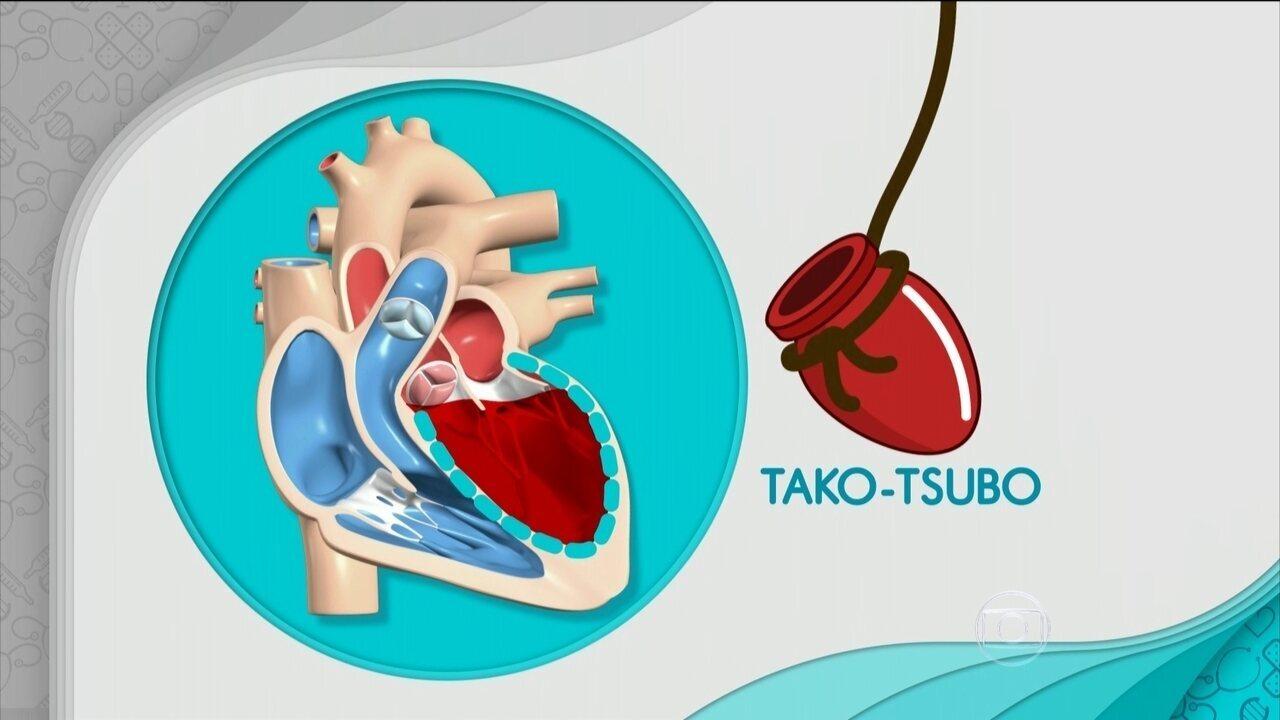 Entenda a síndrome do coração partido