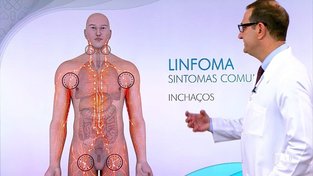Que es un linfoma gastrico
