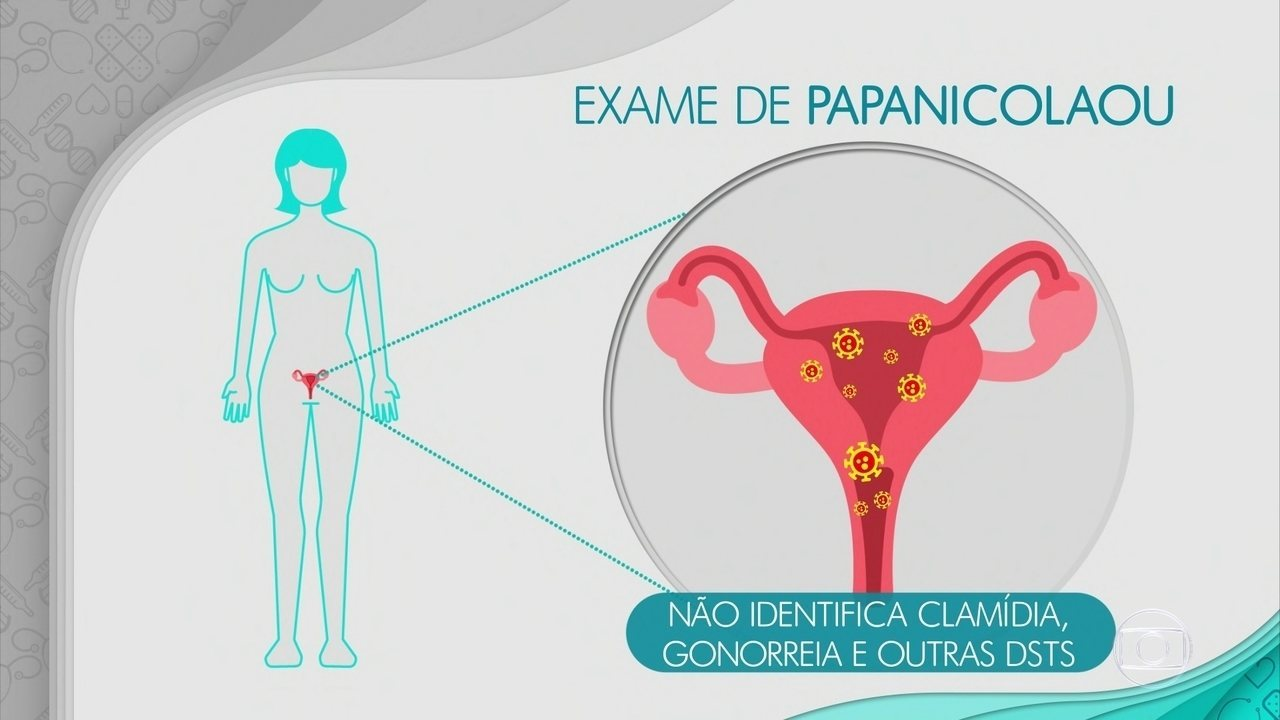 Exame de utero