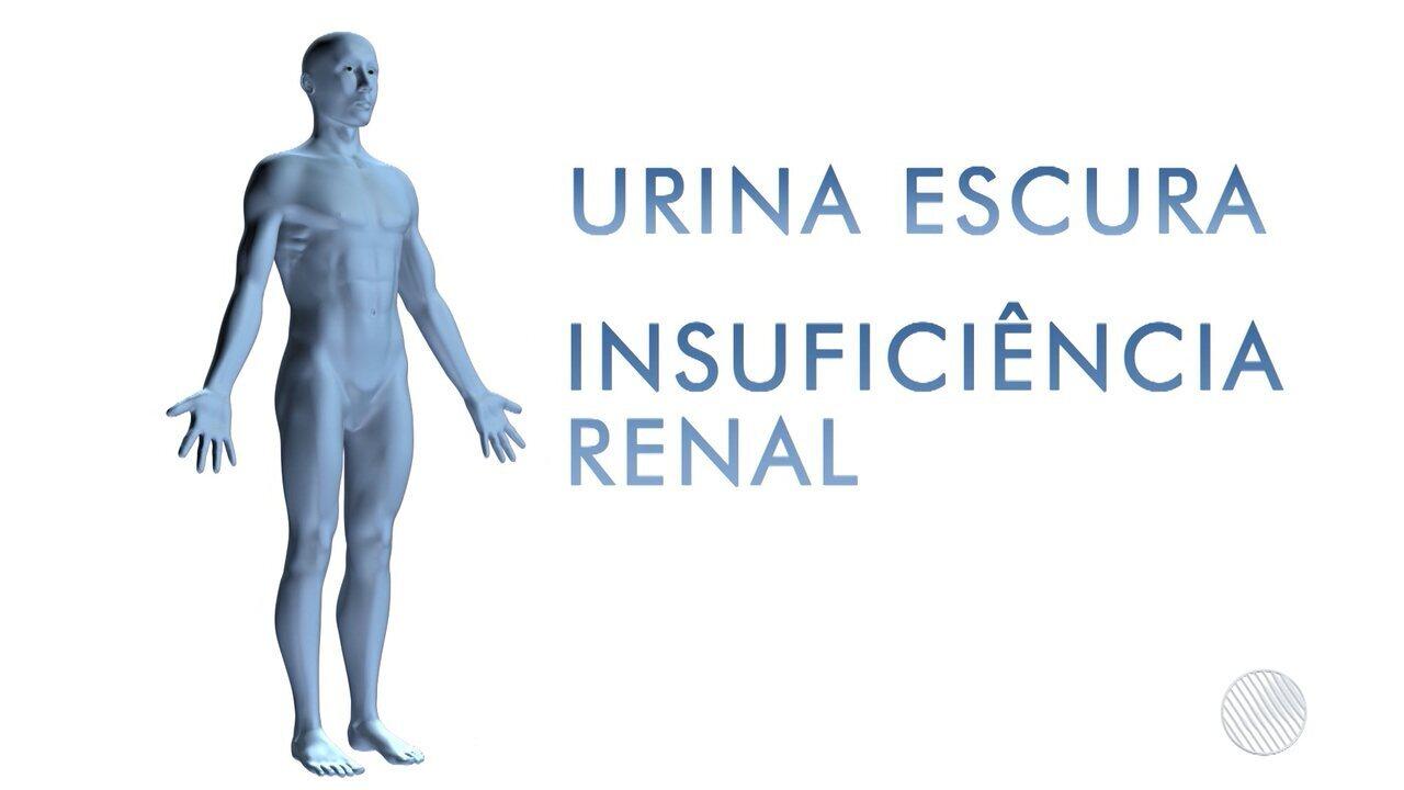 Doença que causa dores fortes no corpo e deixa a urina escura ainda não tem diagnóstico