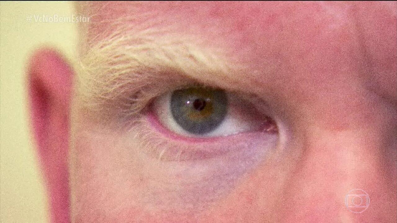 Muitos albinos têm problemas de visão
