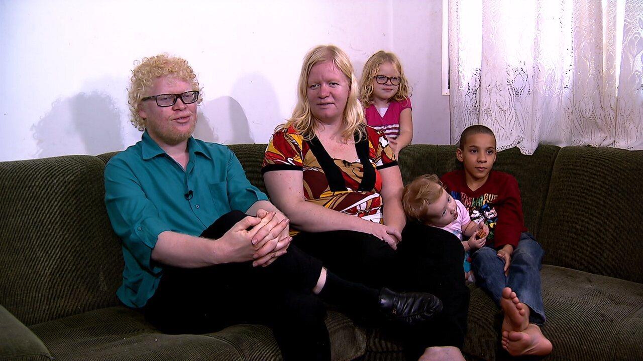 Flávio fala sobre como é ter uma família albina