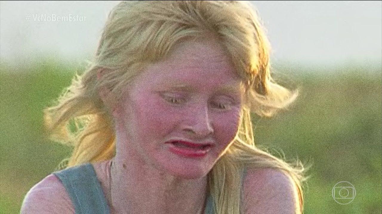 Maior comunidade de albinos do Brasil vive em uma ilha do Maranhão