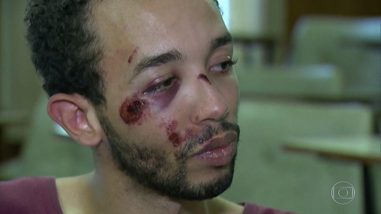 Estudante diz que foi agredido por policial dentro de uma delegacia, em Niterói
