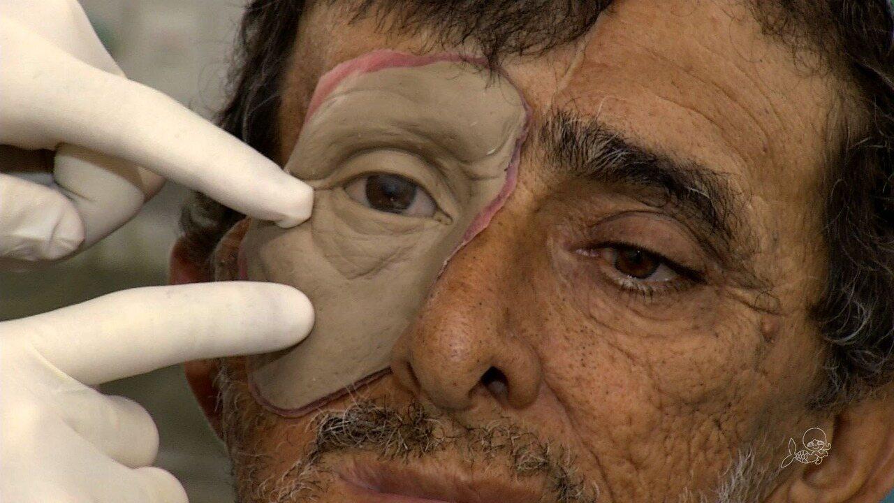 Serviço voluntário da UFC restaura face de pessoas mutilado