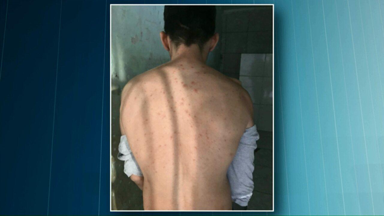 Caso de varicela é registrado na cadeia pública de Toledo
