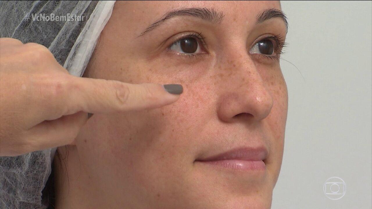 Ácido hialurônico é usado no tratamento de olheiras