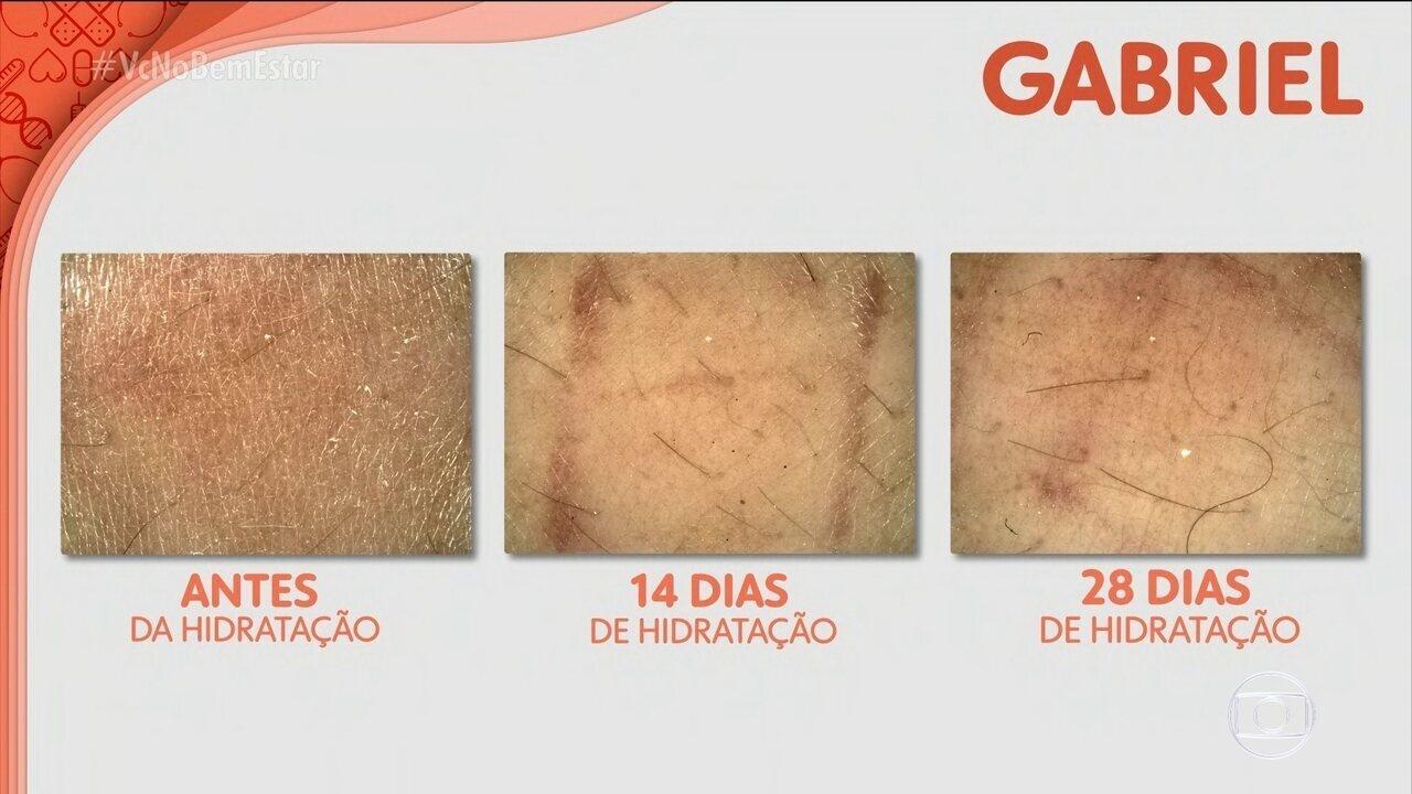 Passar hidratante todos os dias melhora o aspecto da pele