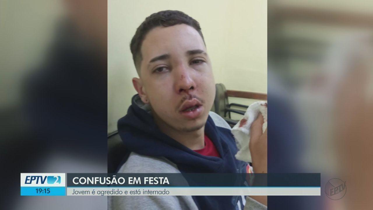Jovem agredido em festa em Descalvado, SP, passou por cirurgia na face