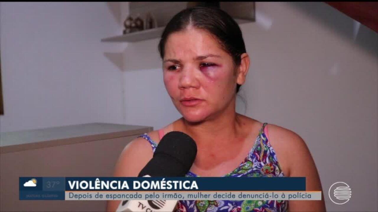 Mulher denuncia irmão por espancamento e fala sobre importância da denúncia desses casos