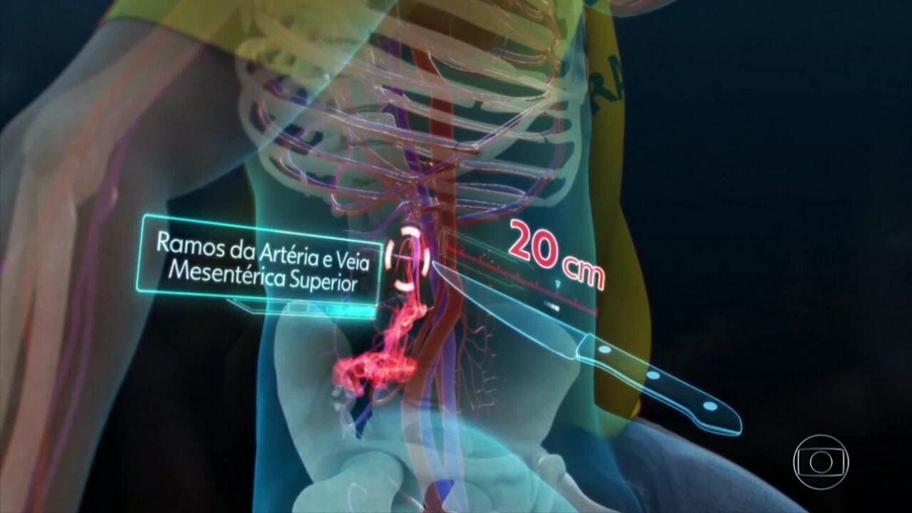 Veja como foi a primeira cirurgia de Bolsonaro