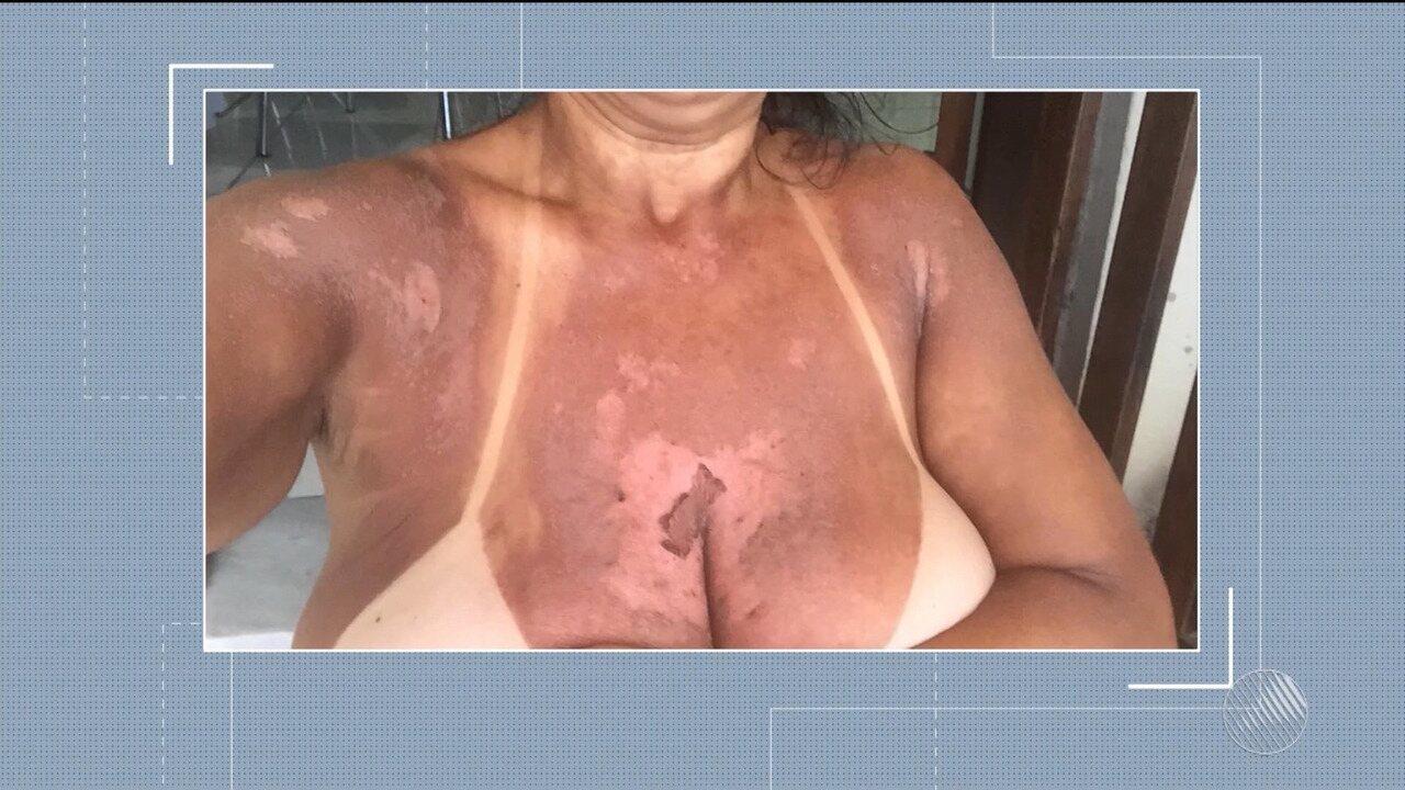 Mulheres procuram a polícia por sofrem queimaduras após fazerem 'bronzeamento de fita'