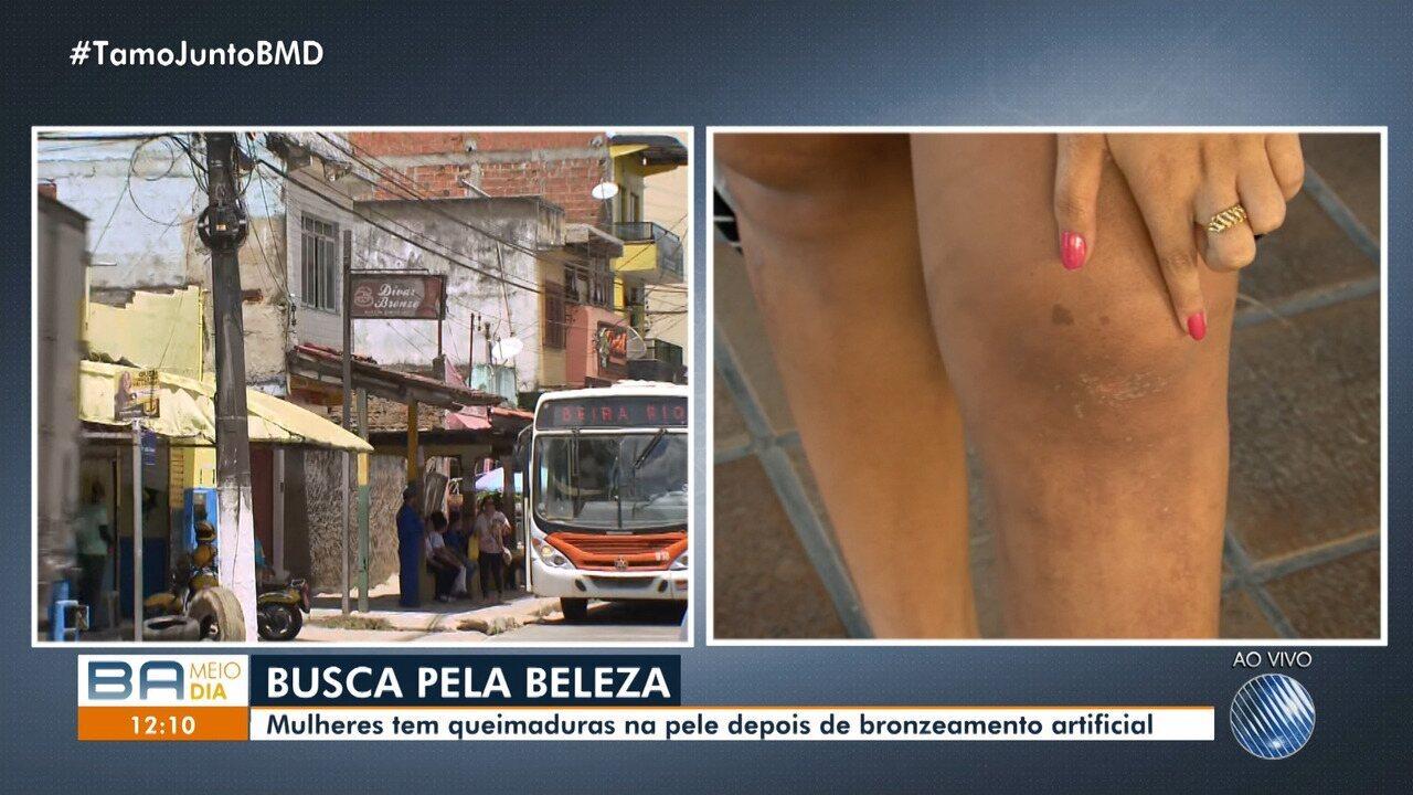 Mulheres têm queimaduras na pele após sessões de bronzeamento artificial
