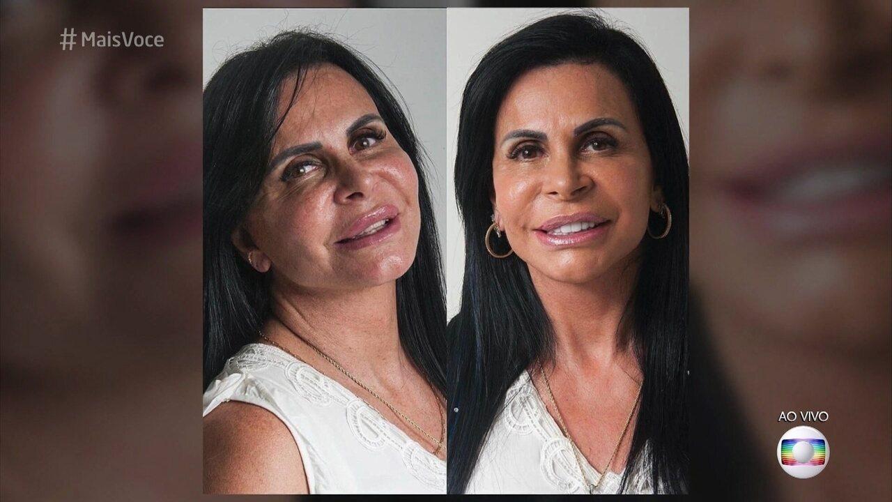 Gretchen fala sobre harmonização facial que fez