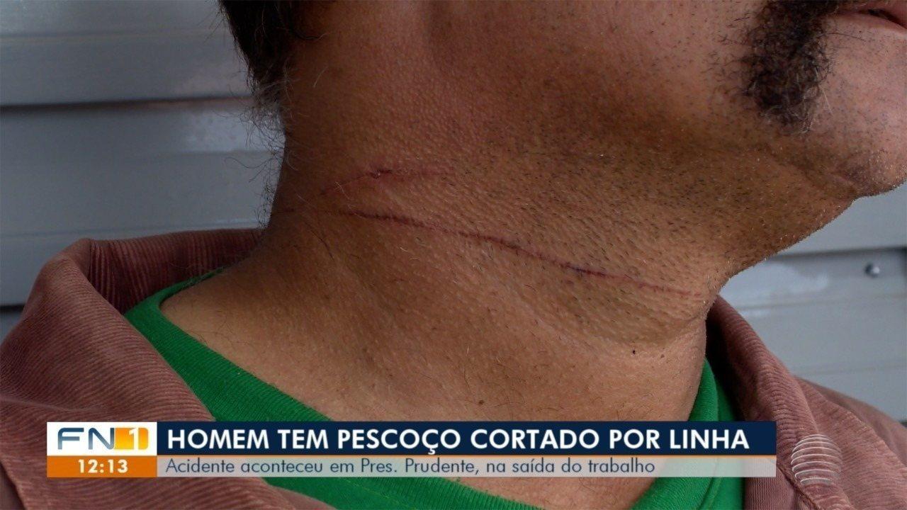 Linha cortante deixa homem ferido, em Presidente Prudente