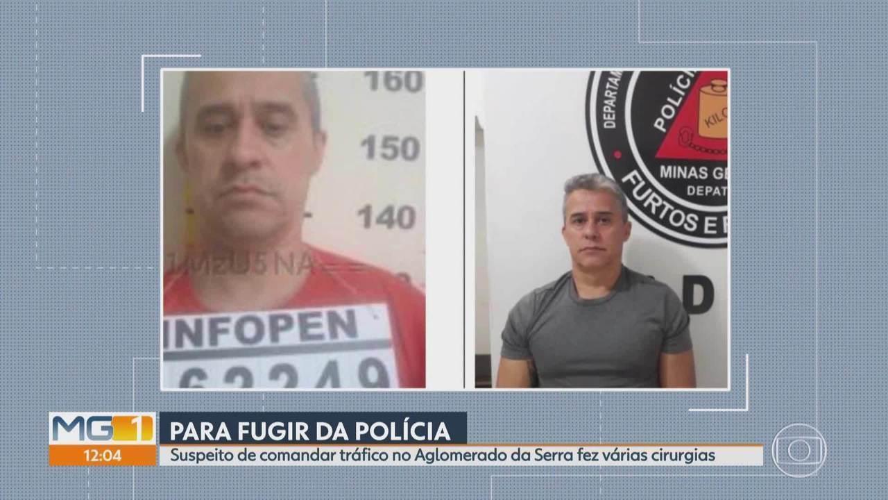 Foragido da polícia que fez várias cirurgias plásticas para não ser reconhecido é preso