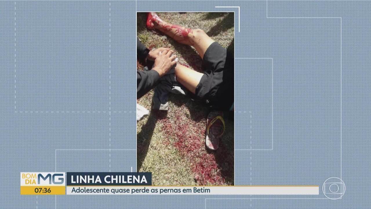 Adolescente quase perde as pernas por causa de linha chilena em Betim, na Grande BH