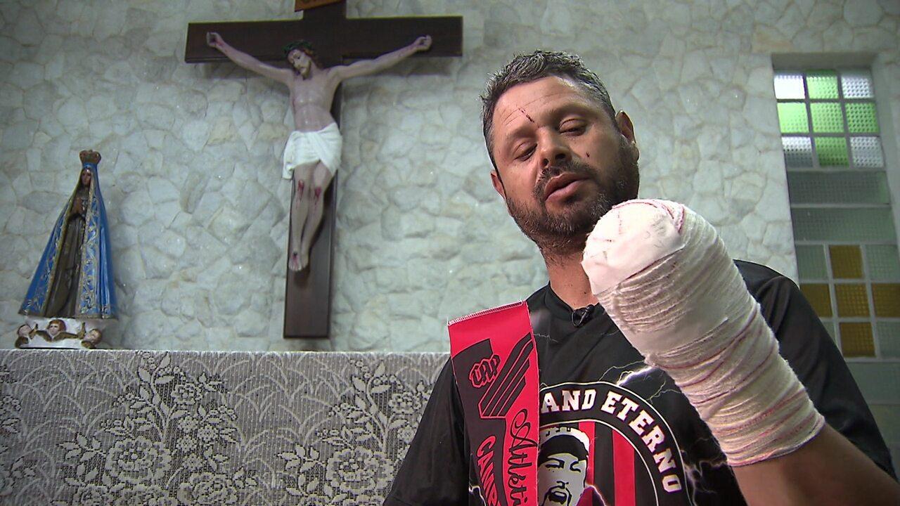 'Eu poderia ter morrido', diz torcedor atleticano que perdeu a mão com sinalizador