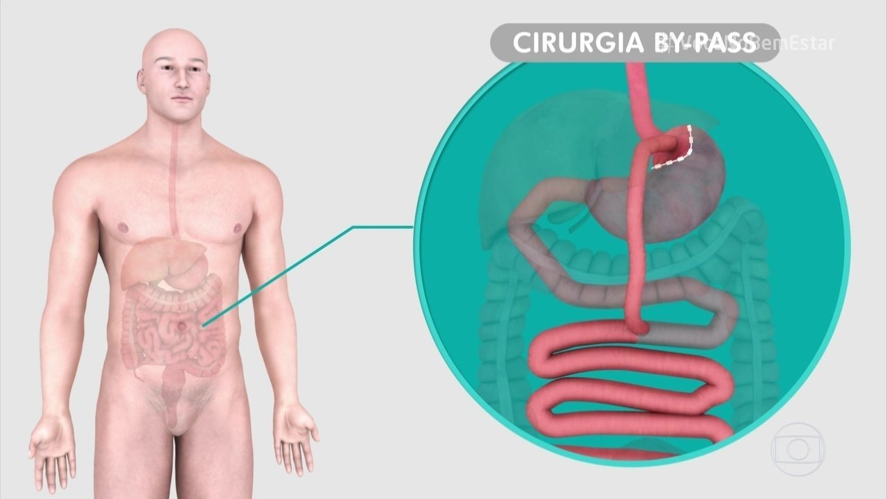 Metabolic Surgery Can Help People with Type 2 Diabetes