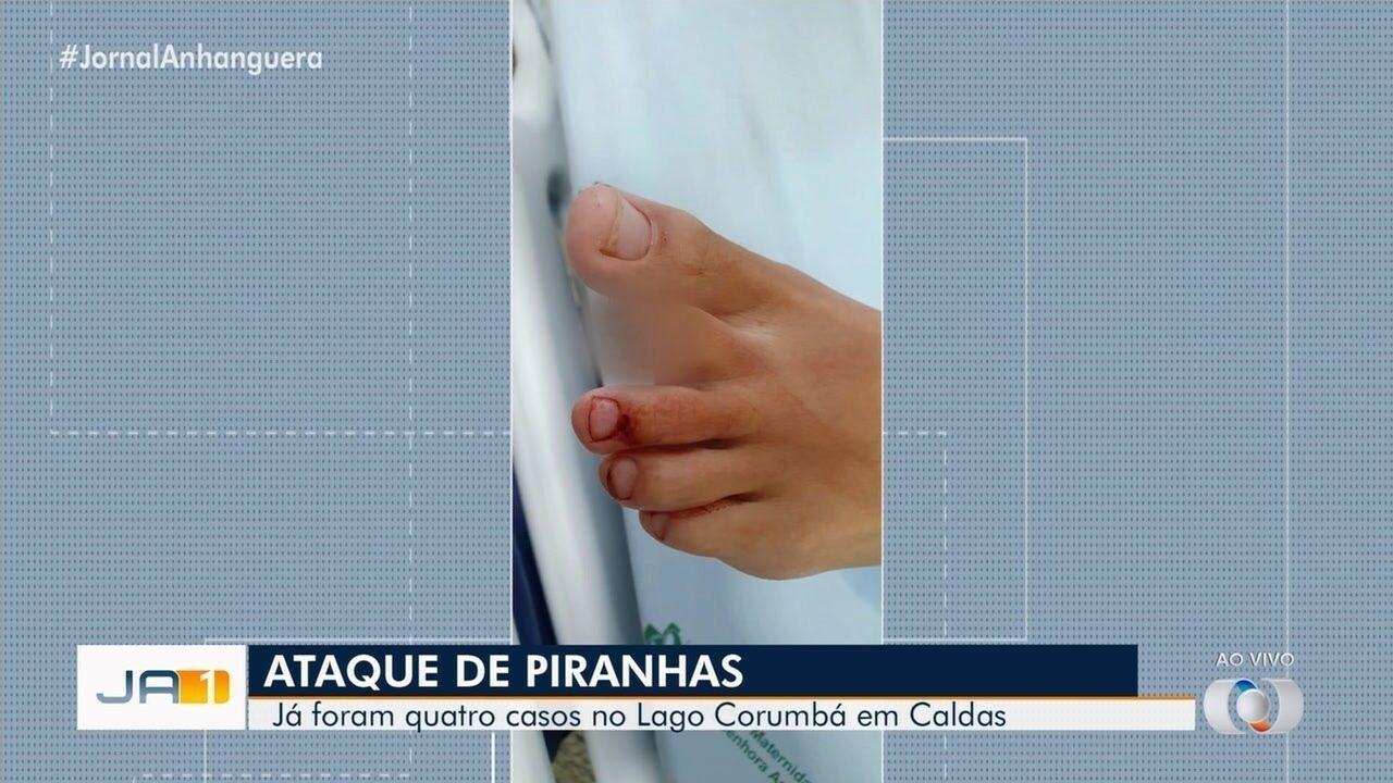 Menina de 13 anos perde dedo do pé após ataque de piranhas no Lago Corumbá em Caldas Novas