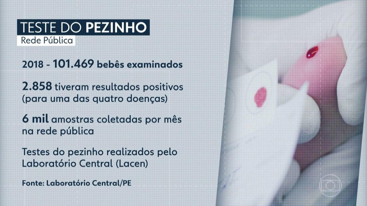 Mais de 30 mil testes do pezinho aguardam liberação de resultado em Pernambuco